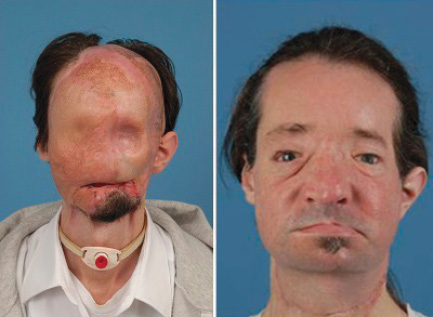 Dallas Weins, 26, pictured before and after undergoing the first full facial transplant in the U.S., in 2011